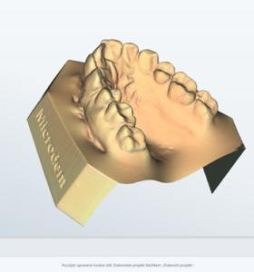 laboratorní skener smart optics s exocad